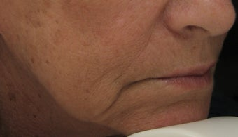 Marionette Line after Treatment with Juvederm Ultra Plus Injection gel