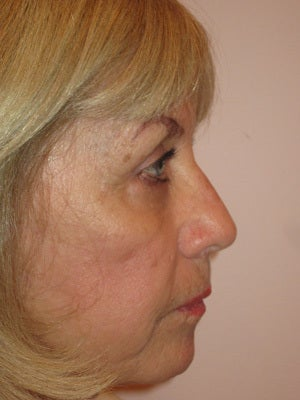 Upper and lower lid blepharoplasty, chemical peel to lower lids