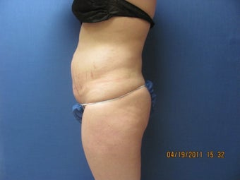 Liposuction of Abdomen and Waist