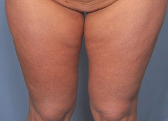 35 Year Old Female Treated For Abdominal and Thigh Skin Excess