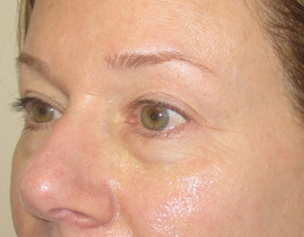 46 year old with eyelid bags undergoing filler treatment
