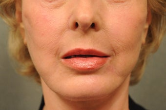 64 Year Old Female with Deep Lip Lines and Asymmetry to Lips