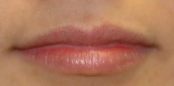 Juvederm in Lips