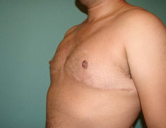 "FTM ""Top Surgery"" Chest Masculinization"