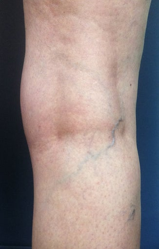 Before & After Leg Vein Treatment in San Diego