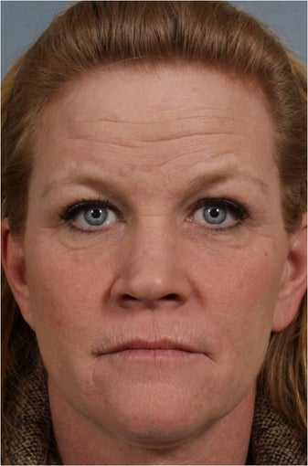 46 year old female with crows feet, loss of lip volume with smokers lines, heaviness of upper eye lids