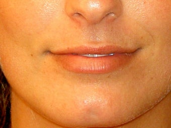 Before lip filler
