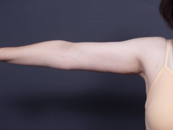 49 year old with sagging arm skin