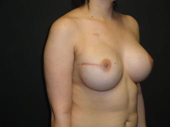Breast reconstruction - Implants