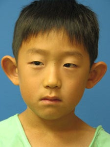 Otoplasty Ear Surgery - Boy