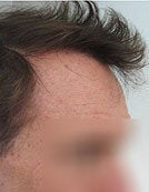 Head and Beard Hair FUE-BHT-SFET to fix follicular unit strip surgery