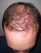 FUE-SFET using head and nape hair only to repair plug transplant