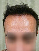 FUE – SFET Using Head and Nape Hair transplant to hairline and frontal scalp