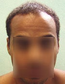 Head and Body Hair FUE- SFET for African American Patient