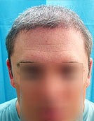 Mixed Head and Body Hair FUE – SFET Hair Transplantation from Nape, Beard, and Body Hair