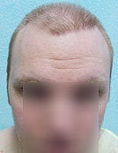 FUE – BHT by SFET Using Head and Body Hair 3,000 graft hairline and scalp