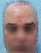 FUE – BHT Using Beard and Body Hair Only 2,000 graft repair using Stomach, Arm, and Leg donor hair
