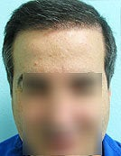 FUE – BHT by SFET Using Only Nape, Head and Body Hair