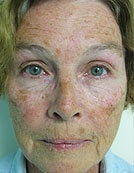Skin Resurfacing Using Plasma Rejuvenation with Portrait