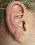 Split Earlobe