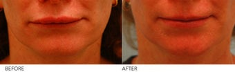 Upper Lip Reduction
