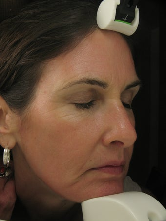 Fraxel Dual Laser for wrinkles around eye, cheeks, forehead