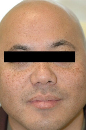 Asian Skin Freckle Removal