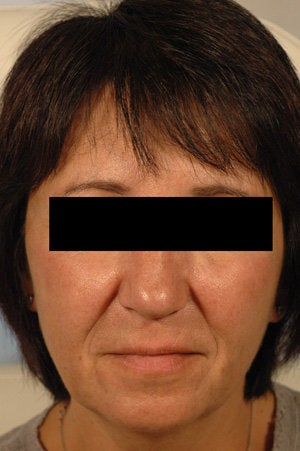 Juvederm for laugh lines