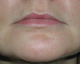 Permasil lip augmentation