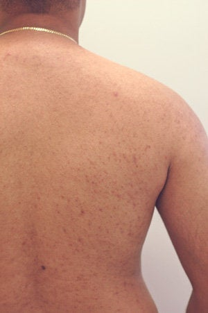 Permanent Back Hair Removal with Lasers