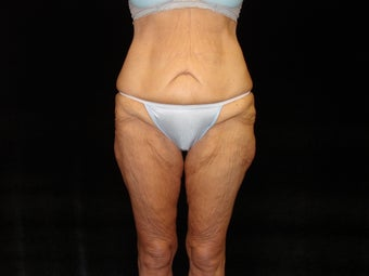 Body Lift with Liposuction of Abdomen, Waist, and Flanks