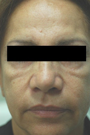 Cheek Shaping with Juvederm Los Angeles Before and After Photos