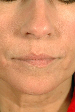 Juvederm for Mouth Rejuvenation