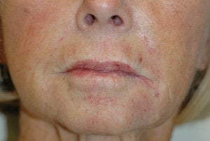 Juvederm for Smile Lines Long Beach, CA Before and After Pictures