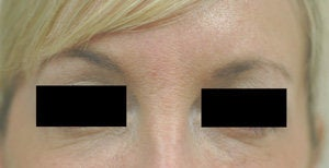 Bags under eyes before and after pictures Juvederm