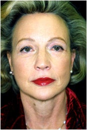 Facelift, Endoscopic Forehead Lift, Quadrilateral Blepharoplasty