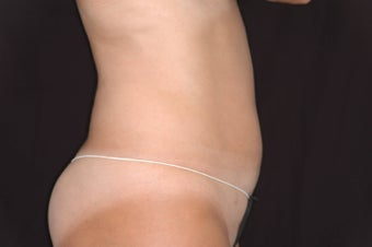 Body Jet Lipo for Abdomen in Florida
