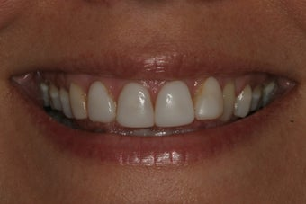 Smile Makeover with 8 Veneers