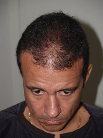 Hair Transplant - 3400 grafts
