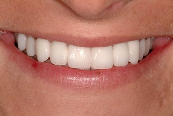 Bridges and Veneers