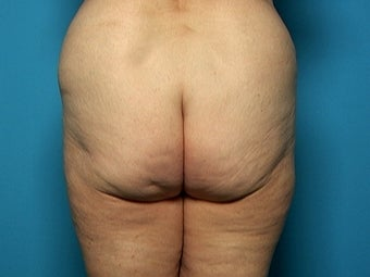 Buttock and Outer Thigh Lift