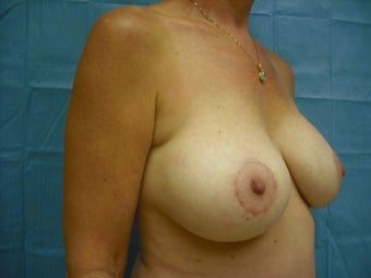 Breast Augmentation & Lift