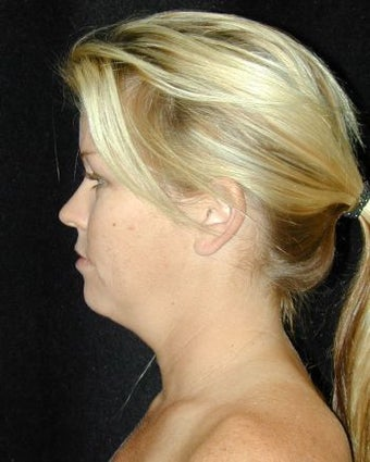 Liposuction of the Chin