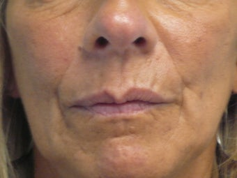 Juvederm Nasolabial folds and Lips