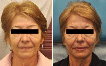 Restylane and Perlane used to volumize the entire face.