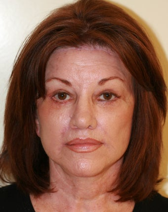 Facelift and Rhinoplasty