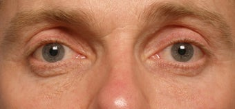 Restylane upper eyelid hollows