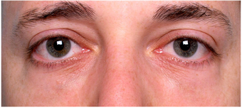 Restylane to lower eyelid hollows