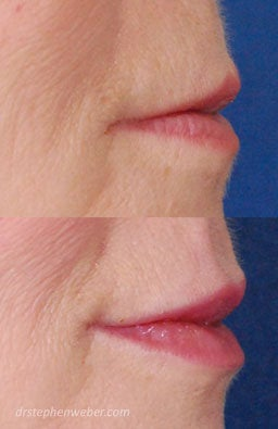 Restylane Lip Injection