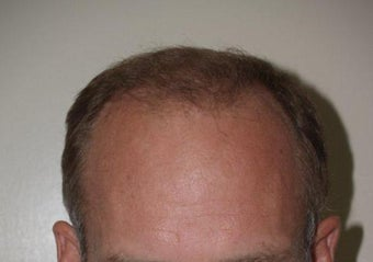 Hair Transplant / 2000 grafts